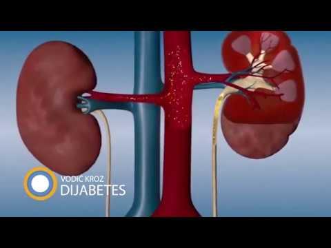 Hipertenzije i aure
