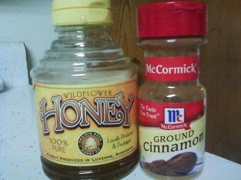 Video The Health Benefits of Cinnamon & Honey
