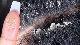 MY BIGGEST FLAKES EVER PART 2   Scalp Scratching And Picking   Satisfying Dandruff Removal ASMR