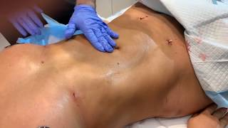 Best Procedure After Lipo of the Abdomen Doing Lymphatic Drainage Massage | 1 Day Post-Op | Dr. Emer