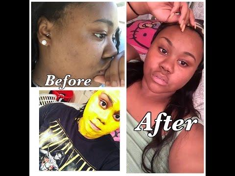 Tumeric Face Mask Saved My Skin