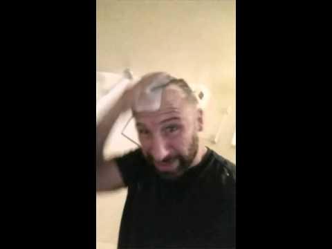 Shea butter para sa buhok pagkawala review