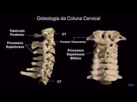 Osteocondrosi cervicale e ronzio nel trattamento orecchie