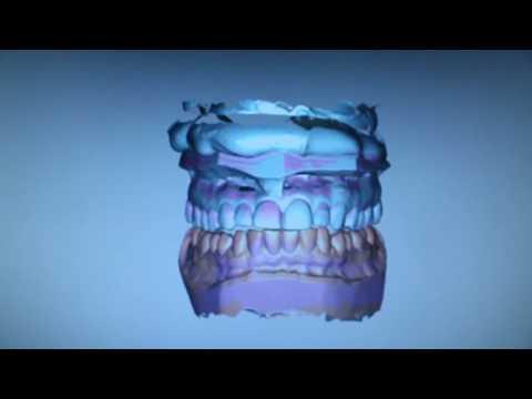 CAD/CAM gefreesde CMD splint