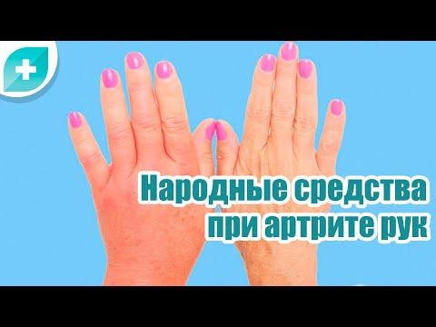 Народные средства при артрите рук и боли в суставах
