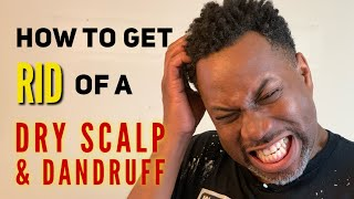 How To Get Rid Of A Dry Scalp   Cure For Dandruff   Dry Scalp & Dandruff Medication