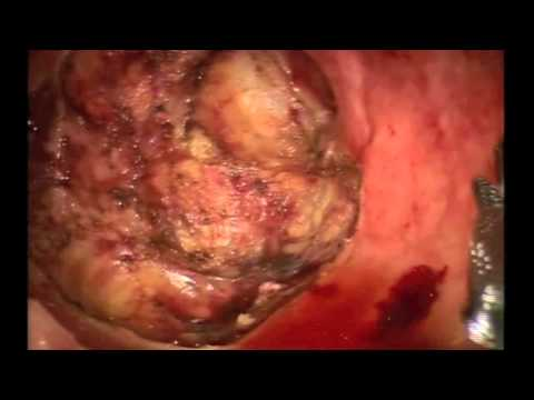 Robotic transanal minimally invasive surgery