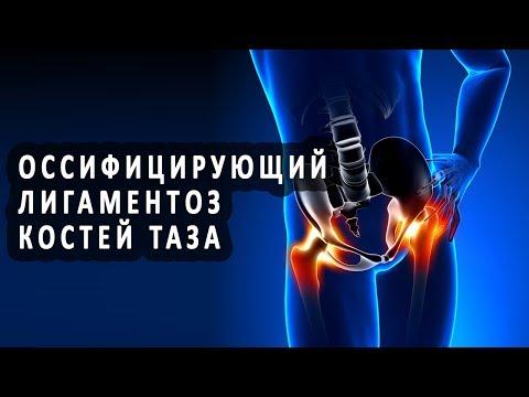 Что такое оссифицирующий лигаментоз костей таза?