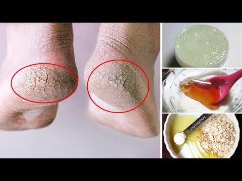 Wie gribok der Handflächen der Hände zu behandeln