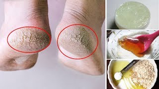 How to Get Rid of Dry Feet and Cracked Heels Fast | Natural Cures