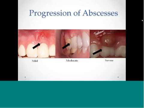 , title : 'Part 2:  Oral Assessment  Series