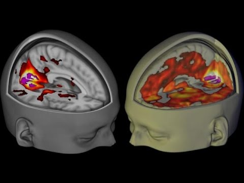LSD Brain Scan Reveals Stunning Info