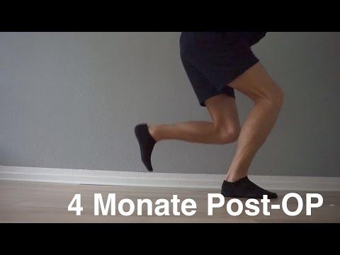 Wie die Geschwüre auf den Beinen bei warikose zu heilen