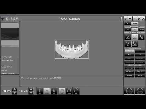 TMJ (4 View) Image Capture