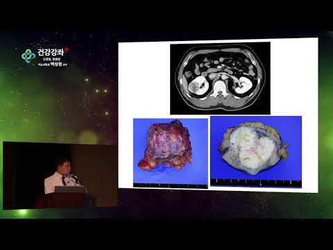 신장암과 방광암
