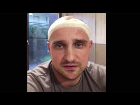 Proginova djufaston wypadanie włosów