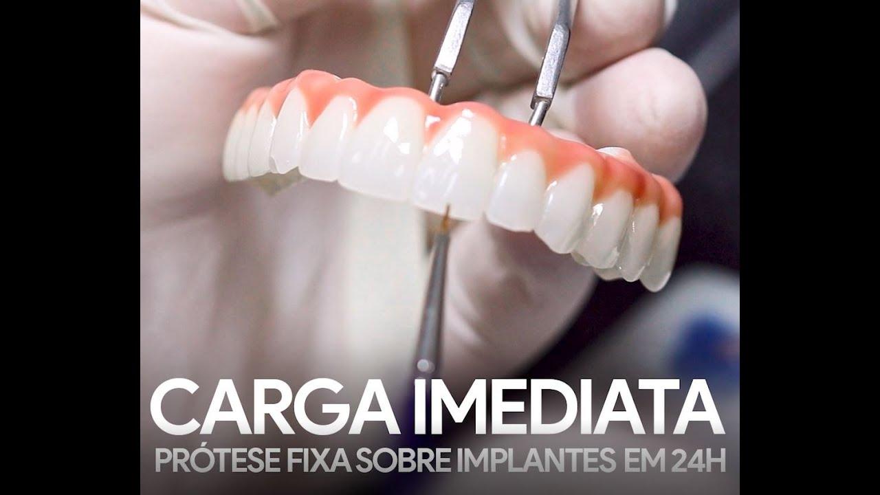 Como é a cirurgia de implante dentário no CiR?