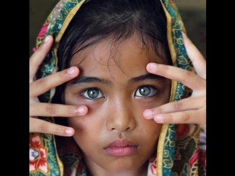 Садится зрение правого глаза
