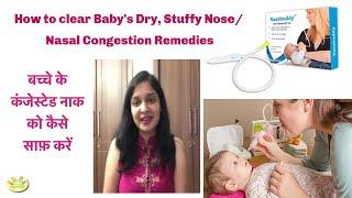How to Treat Nasal congestion/Stuffy nose in Babies | Nasobuddy Nasal Aspirator |Blocked nose