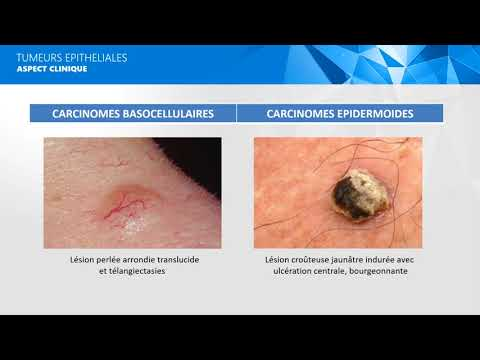 Les maladies accompagnant le psoriasis