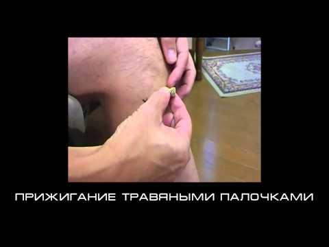 Лечение печени настойкой
