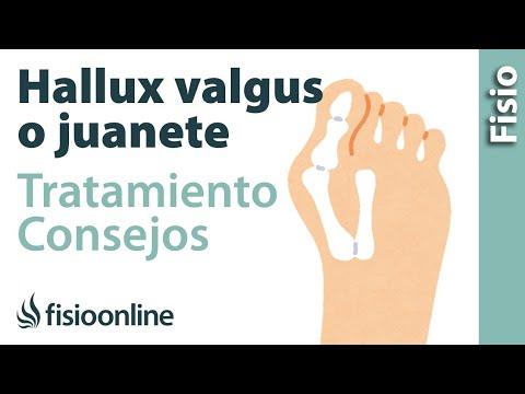 Valgus ความผิดปกติของนิ้วหัวแม่มือ kinezioteypirovanie เท้า