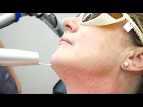 Laser Skin Program  - Medaesthetics