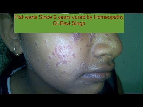 Flat Warts since 6 years cured by Homeopathy