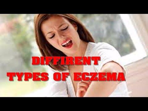 Eczema su trattamento di mani da unguento