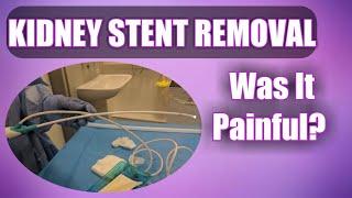 Kidney Stent Removal - Did It Hurt? (See Inside My Bladder!)