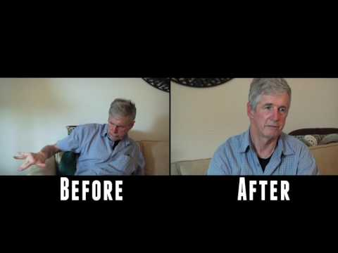 Effects of medical marijuana on a Parkinson's patient.