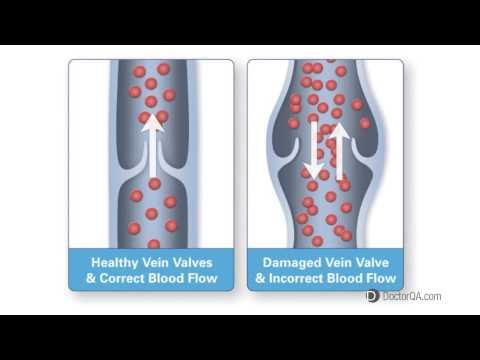 La gamba dopo operazione su rimozione di vene si è gonfiata