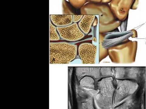 Zu welcher Zeit auf Krücken nach Knieendoprothetik zu gehen