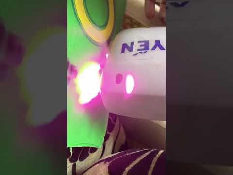 sửa máy triệt lông diode lazer