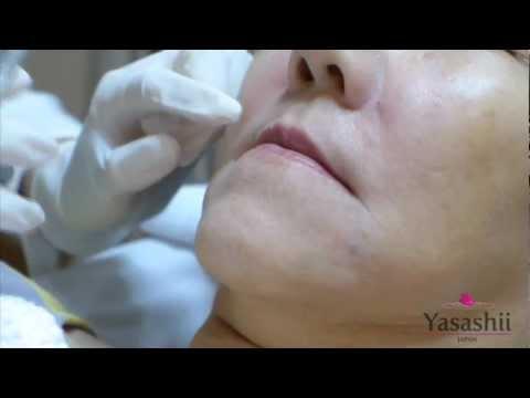 การทำศัลยกรรมพลาสติกบนหน้าอกโดยไม่ต้องปลูกถ่าย