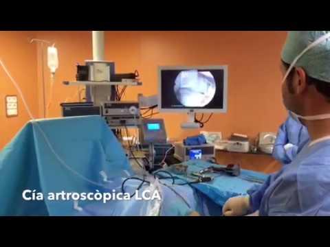 Exploración artrsocópica rotura LCA