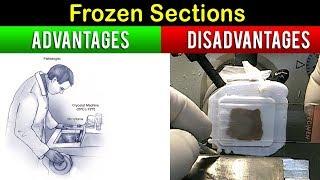 Advantages & Disadvantages Of Frozen section Technique