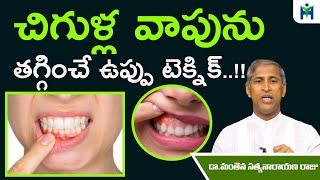 చిగుళ్ల వాపు, నొప్పిని తగ్గించే బెస్ట్ ఉప్పు టెక్నిక్ | Manthena Satyanarayana Raju | Health Mantra|