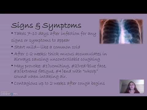 Ruperea durerii articulare