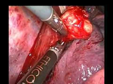 Thoracoscopic Enucleation Of An Esophageal Gastrointestinal Stromal Tumor