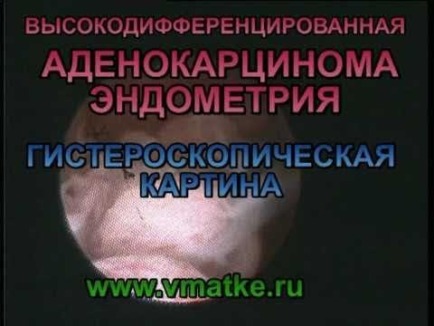 Массаж предстательной оргазм видео