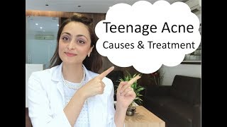 Teenage Acne:  causes  & treatment