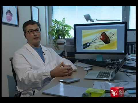 Trattamento macellai di farmaci BPH negli uomini