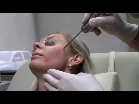 Dr. Seiler using Fotona Q-Switch Laser for Pigment on Face