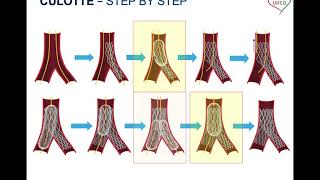 SINERGY 2020 – Bifurcation PCI: lessons from bench testing – Culotte stenting
