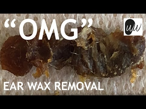 Ear Wax Removal of World's Largest Piece of Ear Wax Blocking Entire Length of Ear Canal - #397