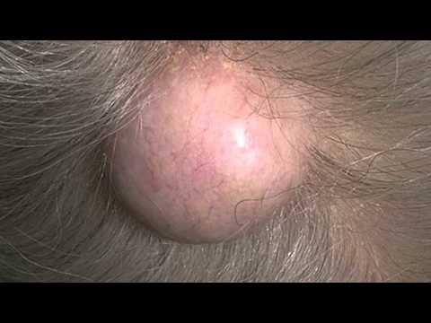 Szyszki chmielowe olej do powiększania piersi przed i po