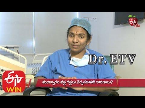 Gyermekek helminthiasisának kezelése