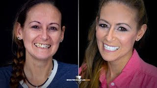 Youtube Video Addiction and Prison to Recovery! Life Changing Extreme Smile Makeover by Brighter Image Lab!