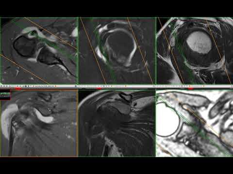 МРТ плеча разрыв надостной мышцы и не только